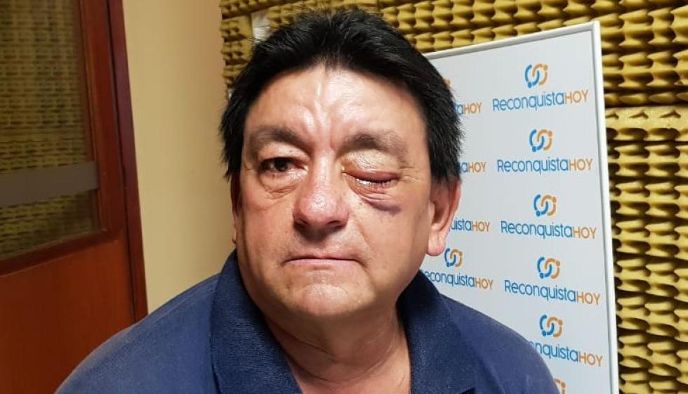 Antonio Centurión le reventó un ojo Luis Alberto Ramirez abril 2019 pp.jpg