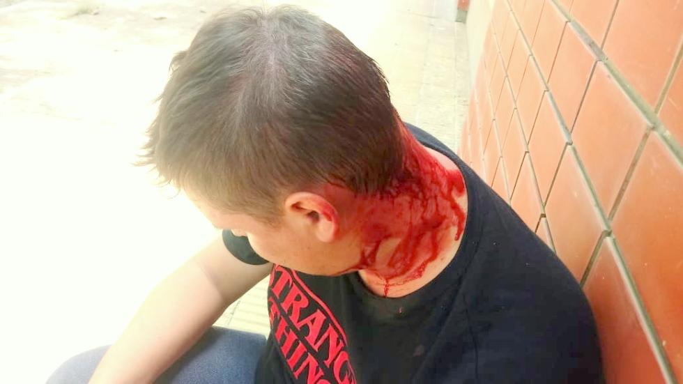 20122019 monzón preso atacaron y lastimaron a Leo Rolón.jpeg