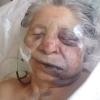 Creen que está esclarecido el violento asalto contra una anciana, a quien dejaron gravemente herida en el baño de su casa.