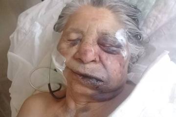 09122018 asalto a la anciana Dolores Encina en calle Colon 445 foto de la víctima.jpg