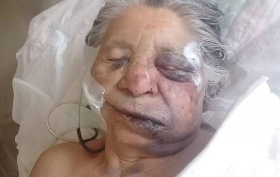 Ahora son dos los detenidos por el asalto con brutal golpiza a una anciana de 84 años. La nieta cita a vecinos para manifestarse este jueves a las 08:00 frente a Tribunales.