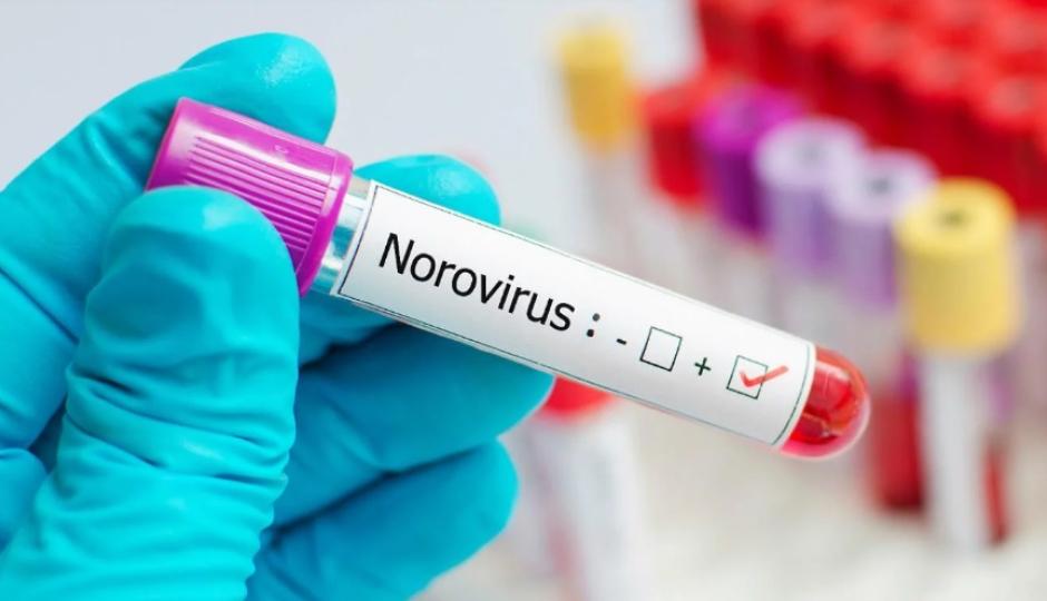 El Ministerio de Salud brindó recomendaciones ante el brote de norovirus en Maciel. Los casos reportados son 400.