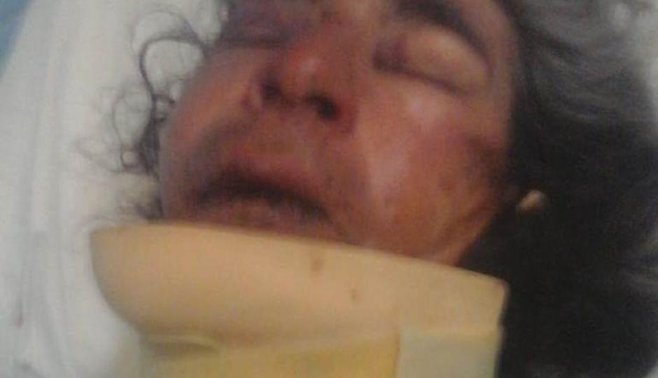 Le pegaron de tal manera que ahora está internado en el hospital de Reconquista con fractura maxilofacial y sus costillas comprometidas.