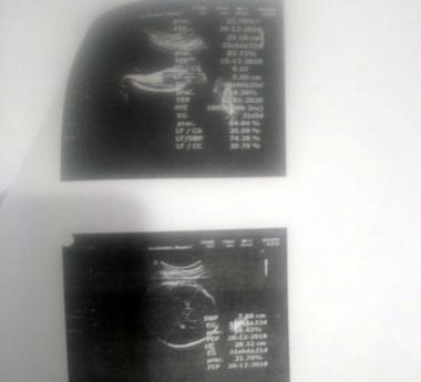 03022020 denuncia x bebe con dos cabezas Hospital Samco Avellaneda Dr Marechal RADIOGRAFIAS.jpeg