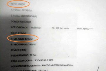 03022020 denuncia x bebe con dos cabezas Hospital Samco Avellaneda Dr Marechal.jpeg