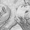 Insólito: nació un bebé con dos cabezas y ningún informe médico lo advirtió pese a tener todos los controles de embarazo.
