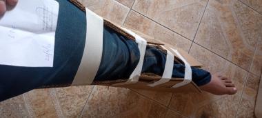pierna quebrada tibia y peroné con cartones y cintas Hospital Reconquista 20 nov 2020.jpeg